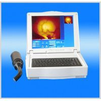 Hand-held infrared mammary diagnosis apparatus